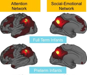 Escáneres cerebrales de bebés prematuros